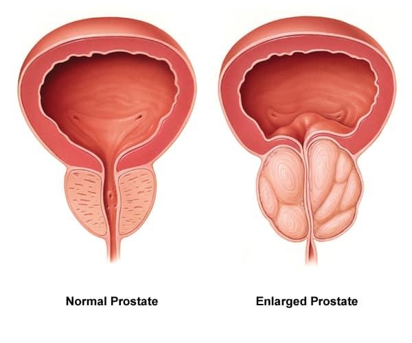 prostate scan